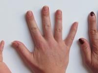 Anatomia - Sistema Tegumentar - A pele
