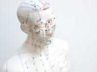 Vantagens da acupuntura