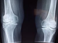 Aperfeiçoamento em Anatomia radiográfica