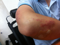 Tratamento de feridas