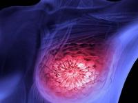 Fisiopatologia do câncer de mama