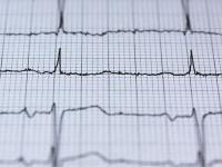 Eletrocardiograma - Enfermeiros