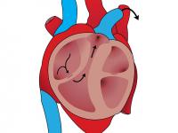Fitoterapia no Sistema Nervoso Cardio Geniturinário